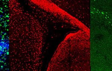 Image shows Olig2 immunostaining.