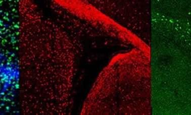 Image shows Olig2 immunostaining.