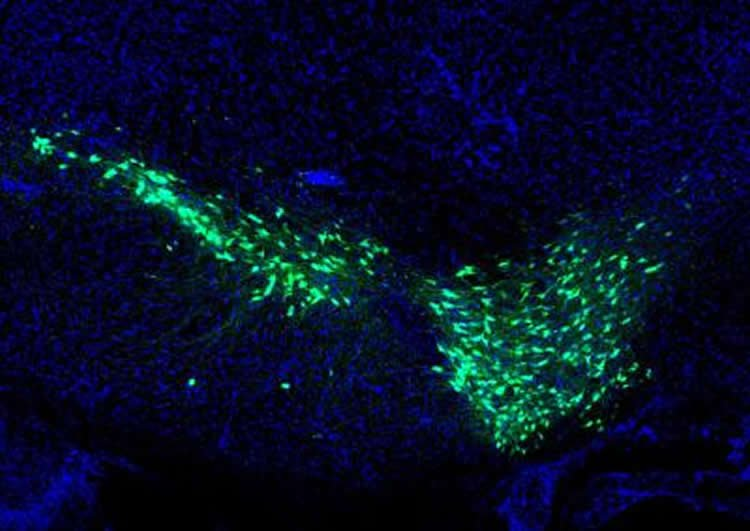 Image shows dopamine neurons.