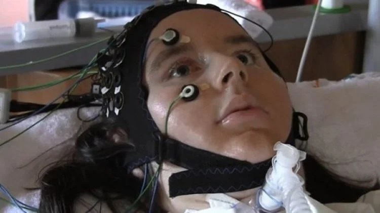 Image shows a patient with ALS using the fNIRS.
