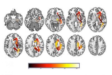 Image shows the brain regions machine learning has picked up as associated with depression.