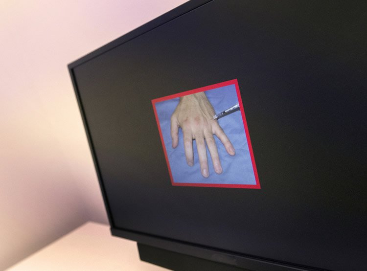 Image shows a hand getting pricked by a sharp object.