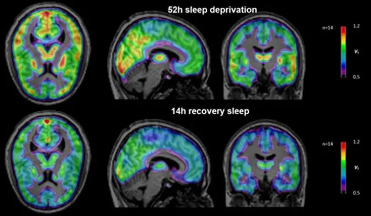High density eeg sleep study