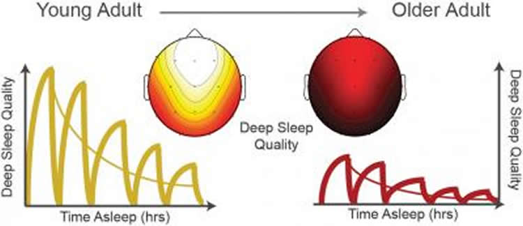 Image shows the neural activity during sleep.