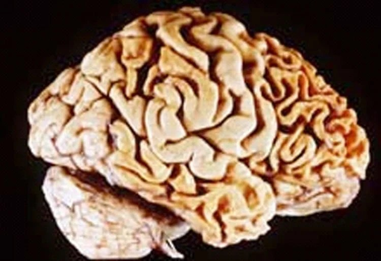 Inflammatory Pathways Link to Obsessive Behaviors in Frontotemporal Dementia