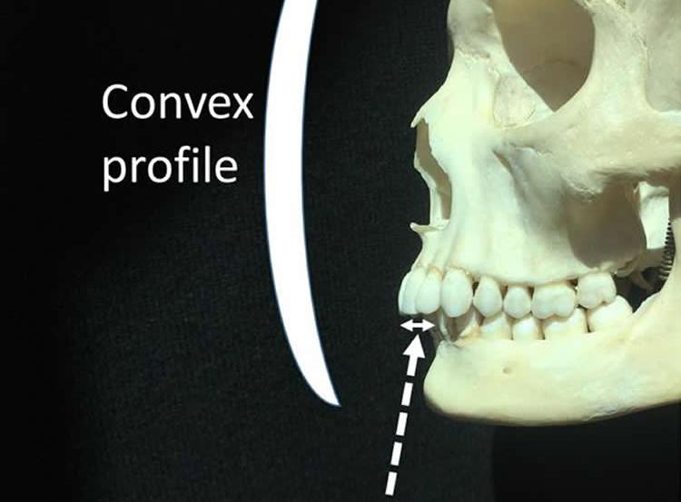 Image shows a facial bone structure.