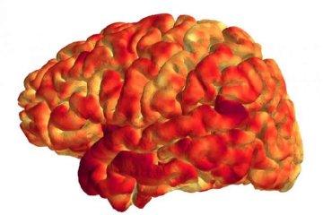 Image shows the cerebral cortex.