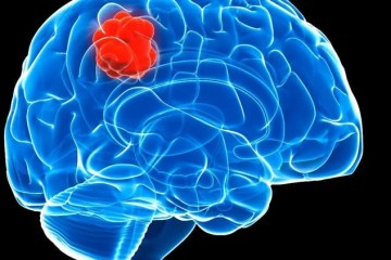 Image shows a brain and a red lump.