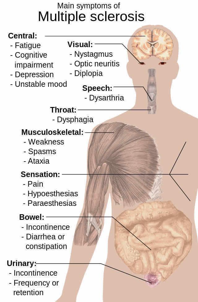 Axons Spinal Neurons Neurosicnecenews Ms Public Neuroscience News