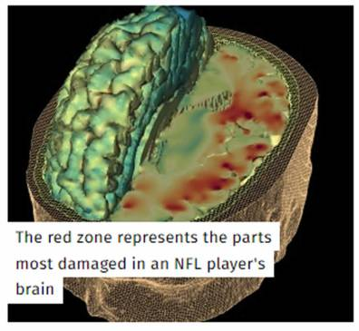 Image shows the brain area most affected.