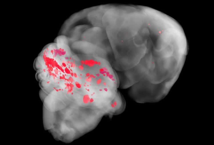 Relationship Between Gut Bacteria and Common Brain Disease