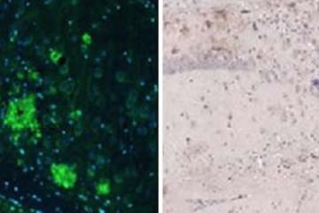 Image shows antibodies.