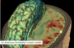 Image shows a brain model of an NFL player.