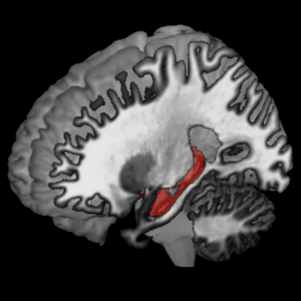 the hippocampus is shown