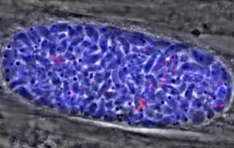 Image shows a Toxoplasma tissue cyst.