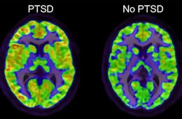 Image shows brain scans of a normal and PTSD brain.