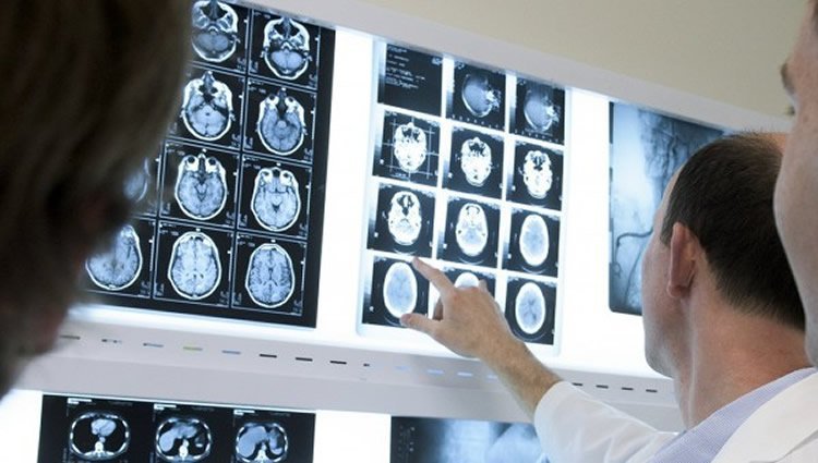 Image shows a doctor looking at brain scans.