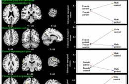 brain sex differences orbitofrontal cortex and amygdala in Louisiana