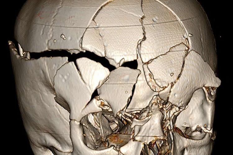 Image shows a smashed up skull.