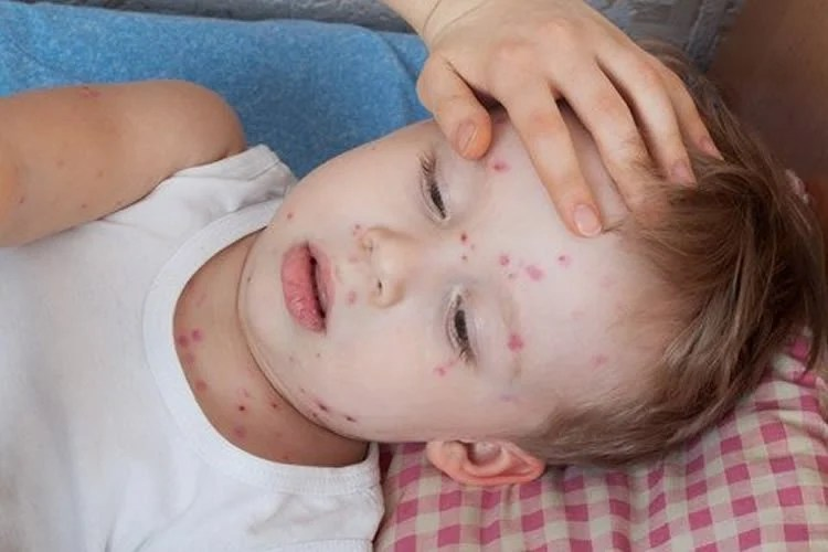 Image shows a small child with chickenpox.