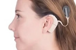 Image shows a woman with a cochlear implant.