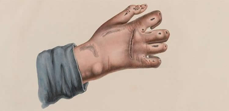Image shows defored hand.