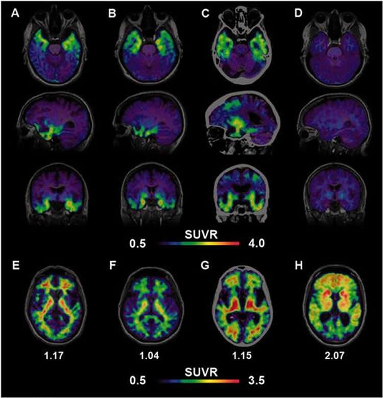 Image shows brain scans of a person with Alzheimer's.