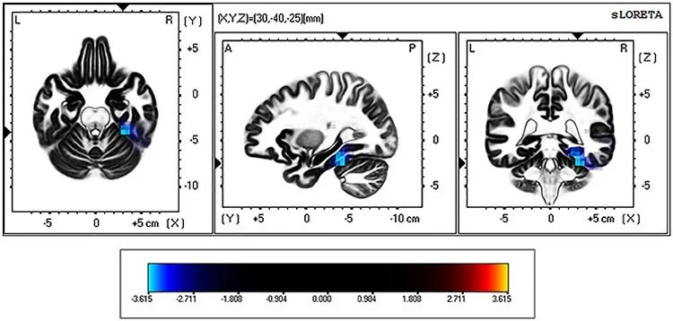 Non Parametric Maps Snpm Comparing The Exact Current Density Values Between Control And Binge Drinking Subjects During Eyes Open Resting State