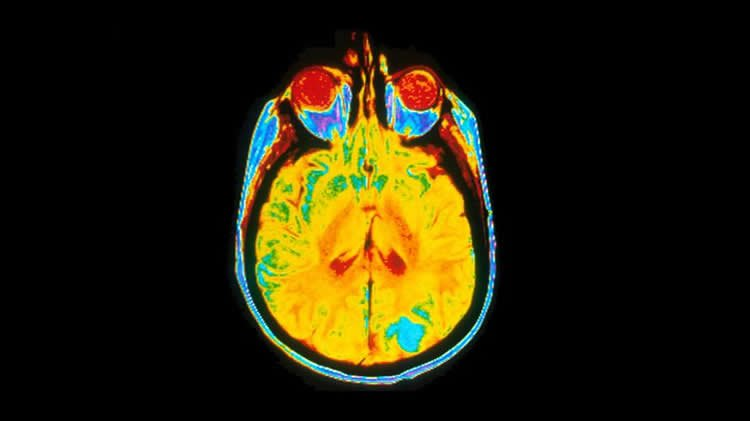 Image shows a brain scan from a cancer patient.