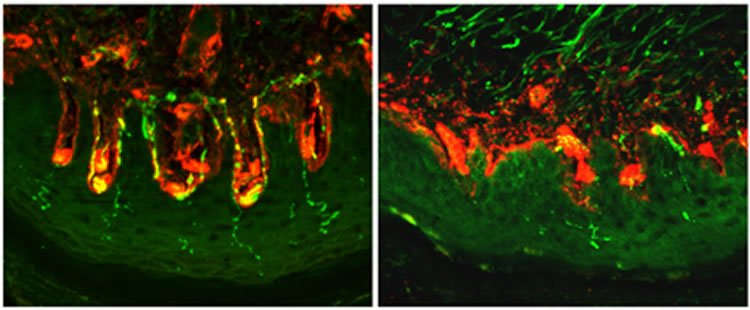Image shows nerve fibers.
