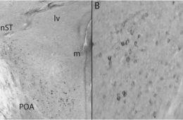 Image shows a brain slice.