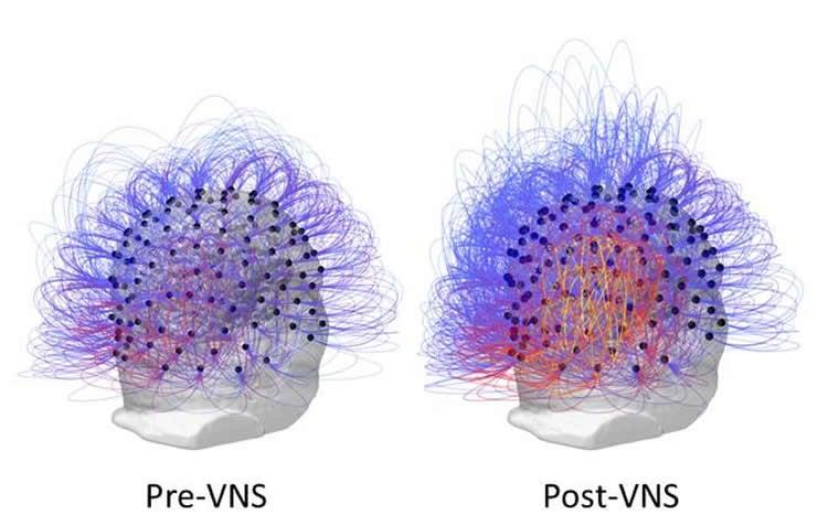 La imagen muestra la mayor conectividad después de VNS.