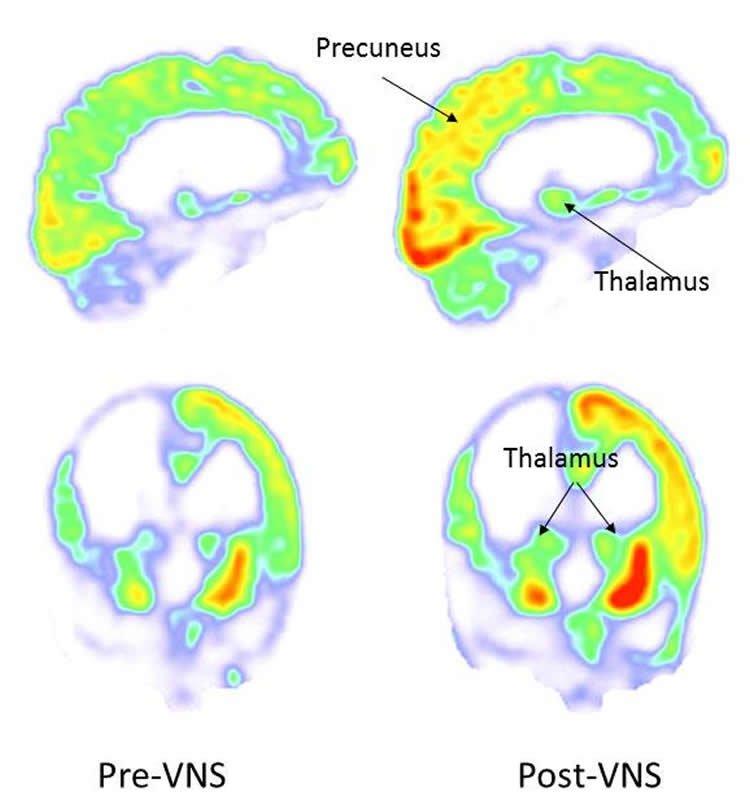 Image shows a how VNS light up the thalamus and precuneus.