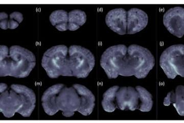 Image shows mouse brain scans.