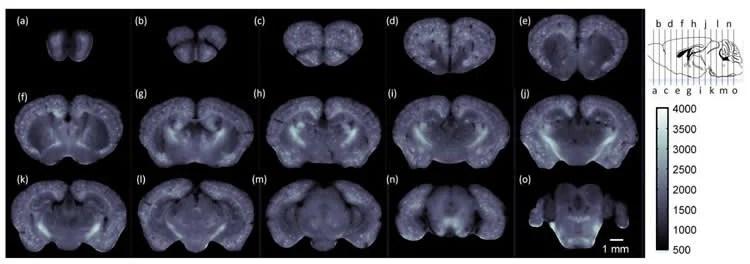 Image shows mouse brain scans.