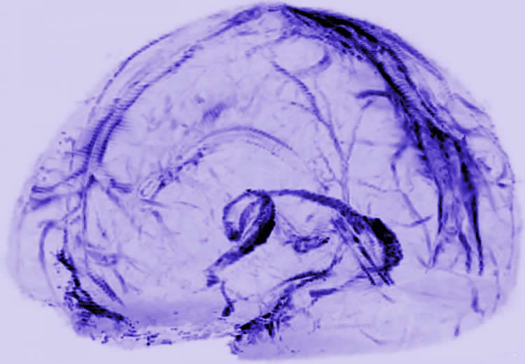 Image shows lymphatic vessels in the brain.