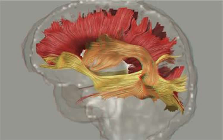 Image shows fiber pathways in the brain.