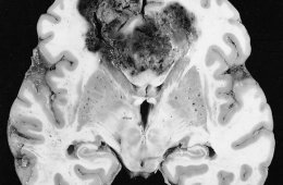 Image shows a glioblastoma brain cancer.