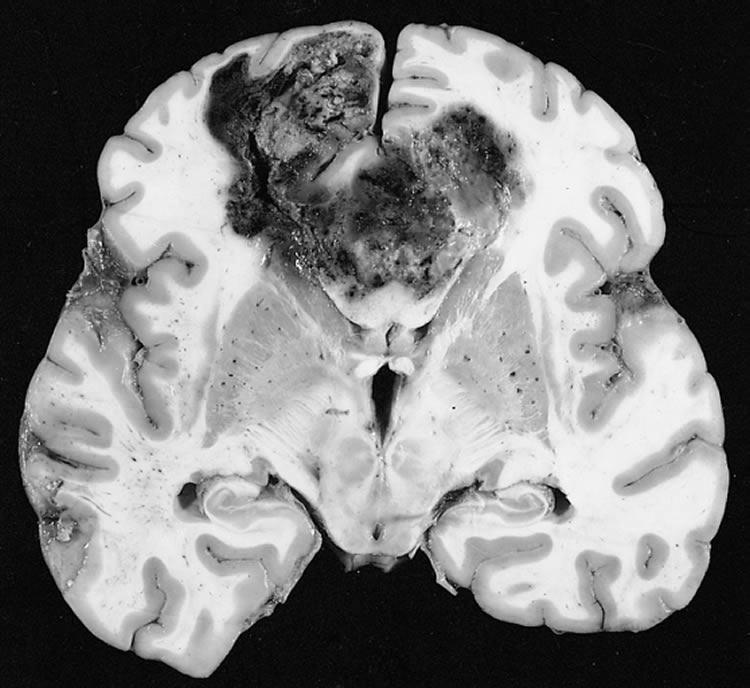 Image shows a glioblastoma brain cancer.