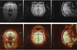 Image shows monkey brain scans