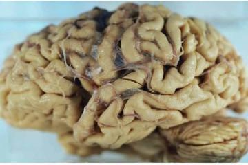 alzheimers brain