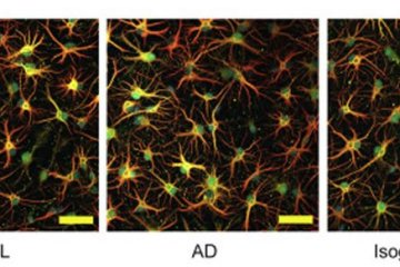 astrocytes are shown