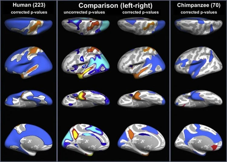 brain asymmetry and general anatomy Introduction: brain asymmetry could be defined as the existence of functional, anatomic or neurochemical differences between both hemispheres it is a dynamic phenomenon, regulated by endogenous.