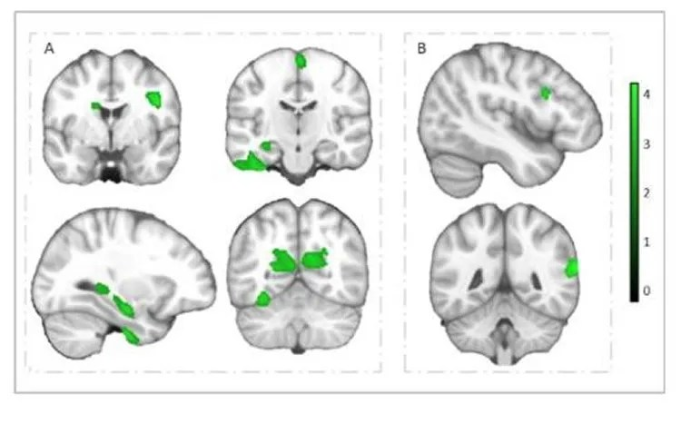 brain scans are shown