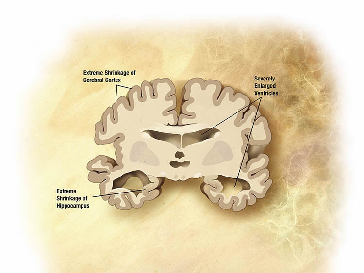 Image shows an alzheimer's brain slice diagram.