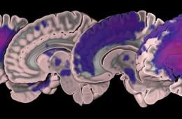 Image shows brain slices.