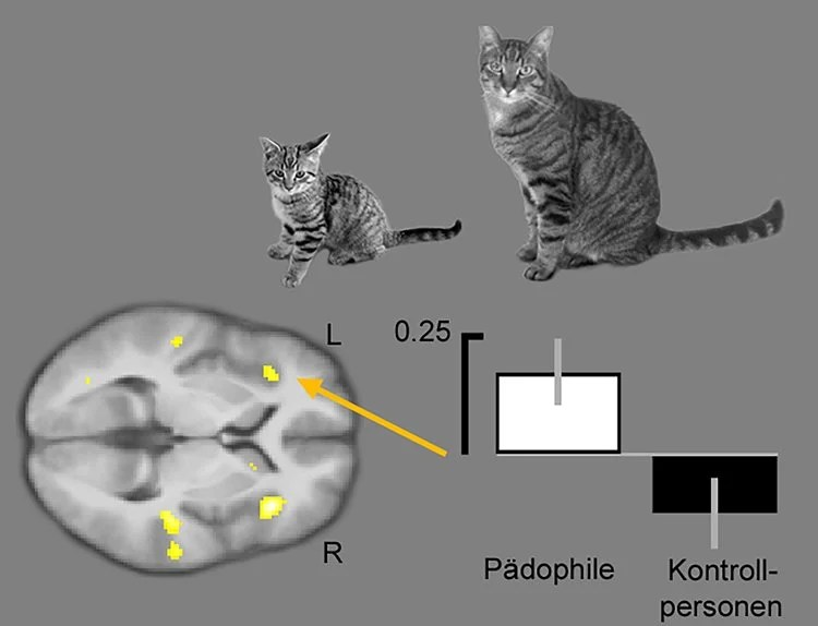 cat and brain scan