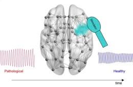 brain stimulation diagram