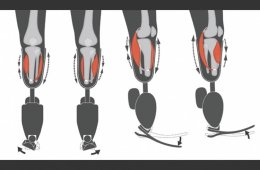 the prosthetic system