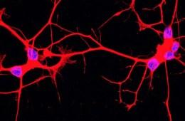 als motor neurons